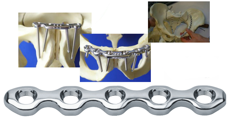 synthes bioresorbable Synthes - costs essay example 1 - synthes introduction the case mentioned that one of synthes' capabilities was that sister company, stratec begun to manufacture bioresorbable trauma implants, and synthes can outsource production of some bioresorbable plates and screws.